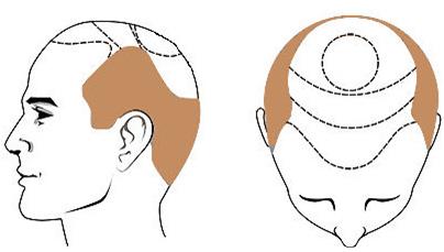 Rimedi naturali per perdita di capelli